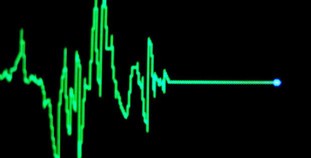 heart_monitor_3078383b